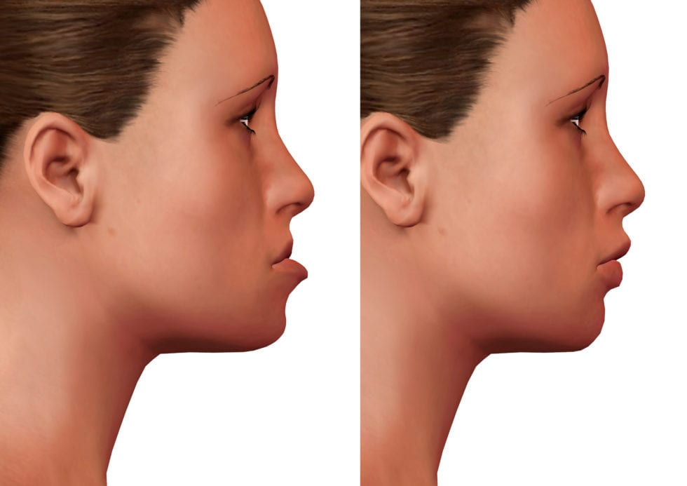 orthognathic surgery, chevy chase md orthodontist for jaw abnormalities