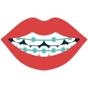 orthodontist in chevy chase, md
